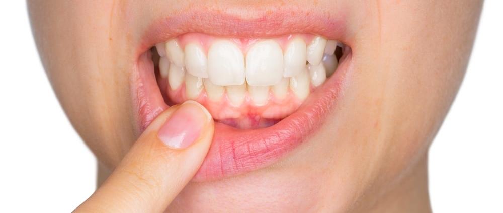 parodontite maladie